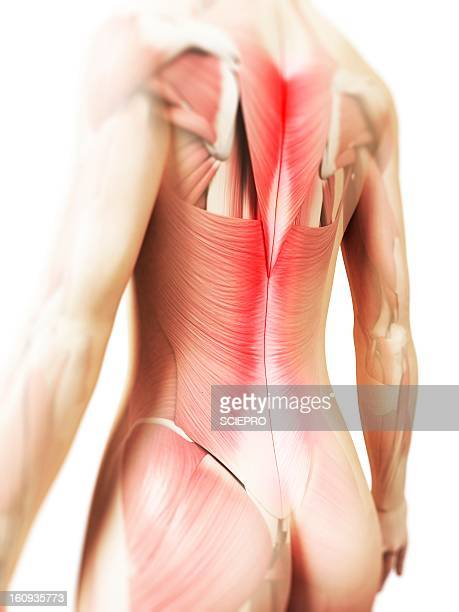 back pain, conceptual artwork - 下背部点のイラスト素材/クリップアート素材/マンガ素材/アイコン素材