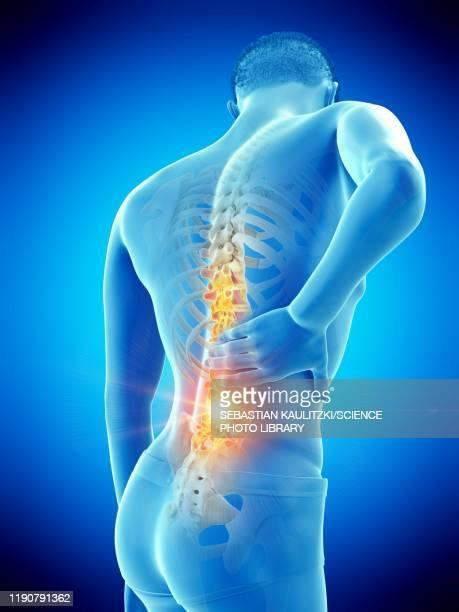 back pain, conceptual illustration - the human body stock illustrations