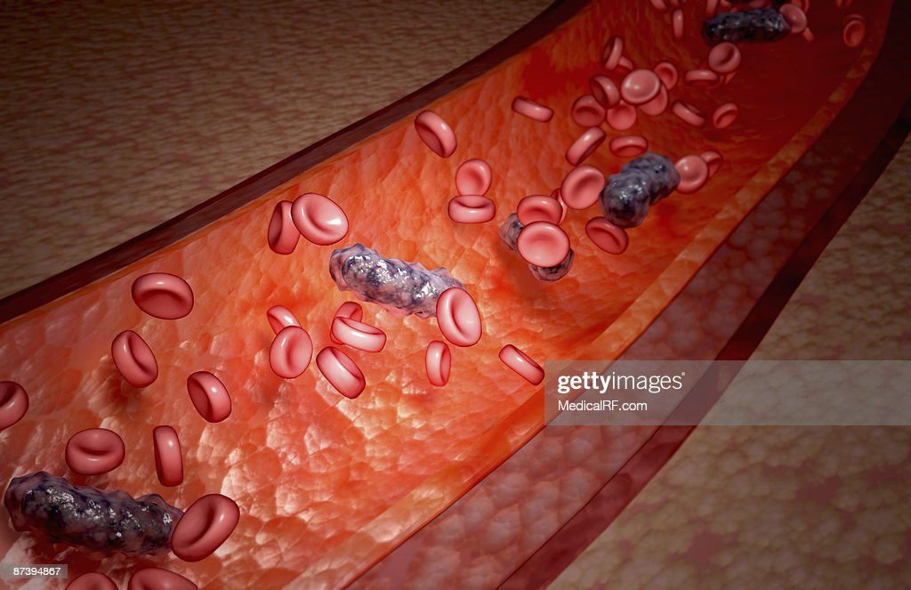 Bacterial blood infection : stock illustration