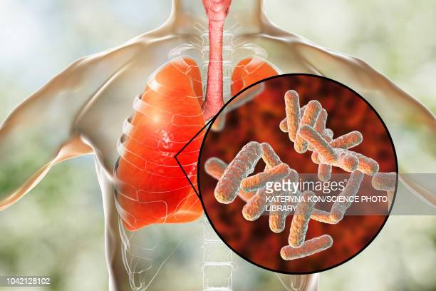 bacterial pneumonia, conceptual illustration - male likeness stock illustrations