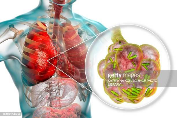bacterial pneumonia, illustration - respiratory disease stock illustrations