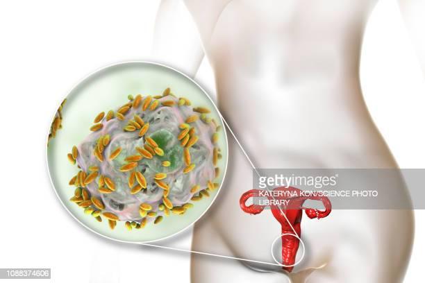 bacterial vaginosis, illustration - pap smear stock illustrations, clip art, cartoons, & icons