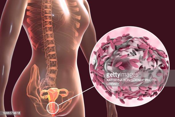 bacterial vaginosis, illustration - pap smear stock illustrations