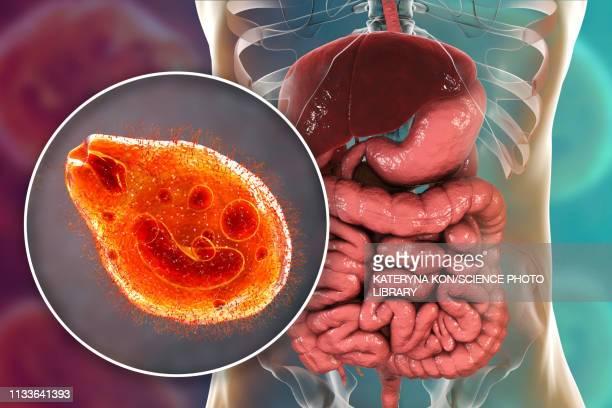 balantidiasis, conceptual illustration - cancer illness stock illustrations