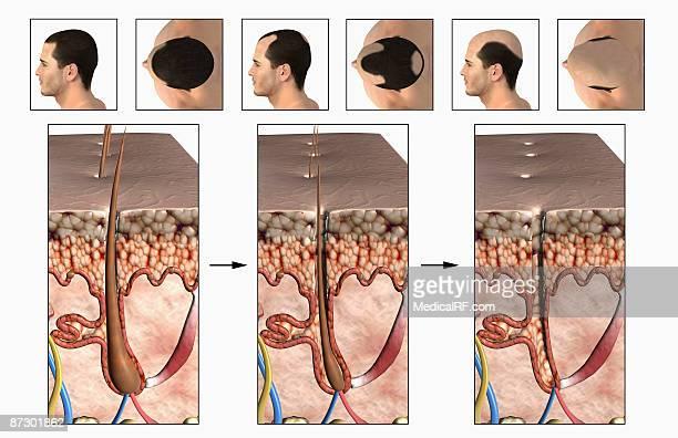 baldness - human scalp stock illustrations