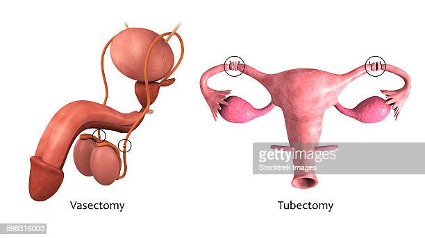 Biomedical illustration of a vasectomy and tubectomy.