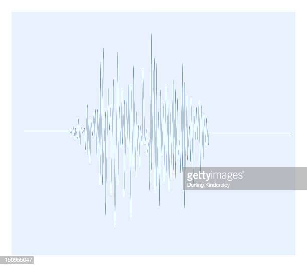 Biomedical illustration of Otoacoustic Emission sound wave chart