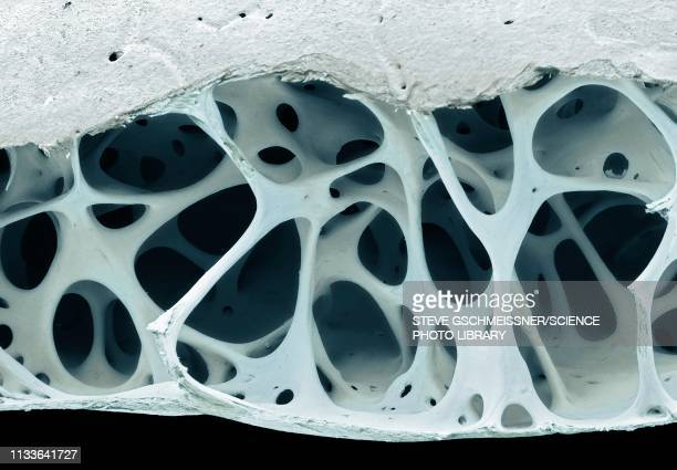 bird bone tissue, sem - tumor stock illustrations