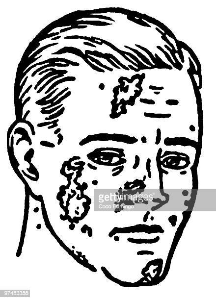 a black and white version of an illustration of an infected man - leprosy stock illustrations