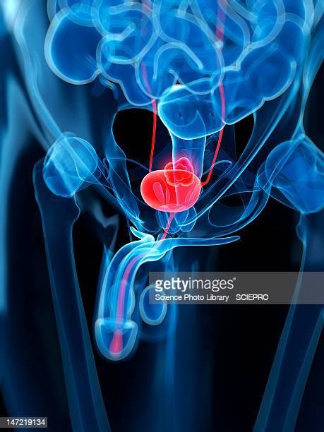 bladder cancer, artwork - bladder stock illustrations