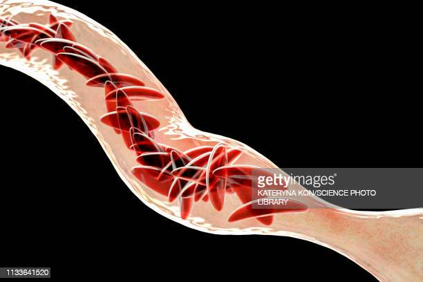 blood vessel blocked in sickle cell anaemia, illustration - salmonella bacteria stock illustrations