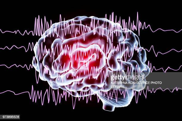 brain and brain waves in epilepsy, illustration - eeg stock illustrations