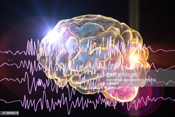 brain and brain waves in epilepsy, illustration - epilepsy stock illustrations