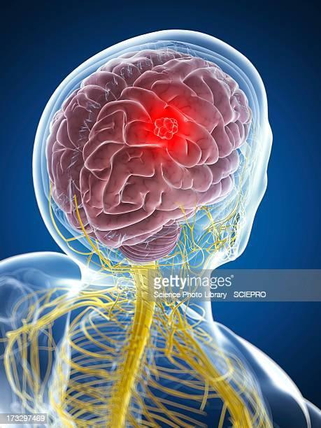 brain cancer, artwork - brain tumour stock illustrations
