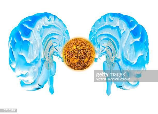 brain cancer, conceptual artwork - brain tumour stock illustrations