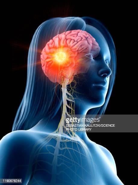 brain cancer, conceptual illustration - cancer illness stock illustrations