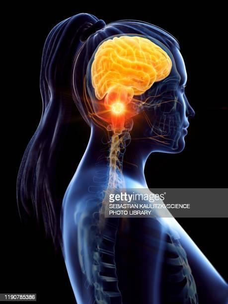 brain cancer, conceptual illustration - brain tumour stock illustrations