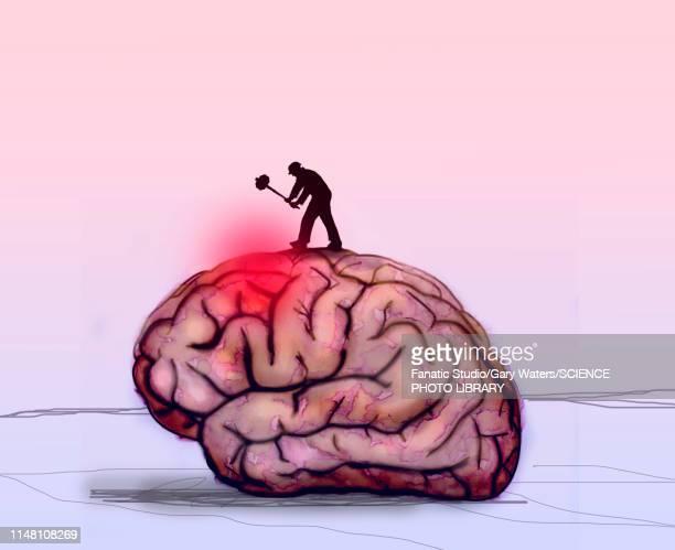 ilustraciones, imágenes clip art, dibujos animados e iconos de stock de brain disease, conceptual illustration - dolor de cabeza