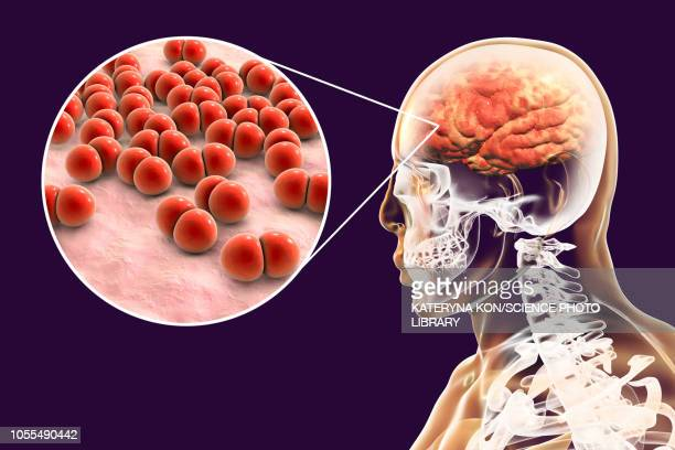 brain infection caused by streptococcus, illustration - streptococcus infection stock illustrations