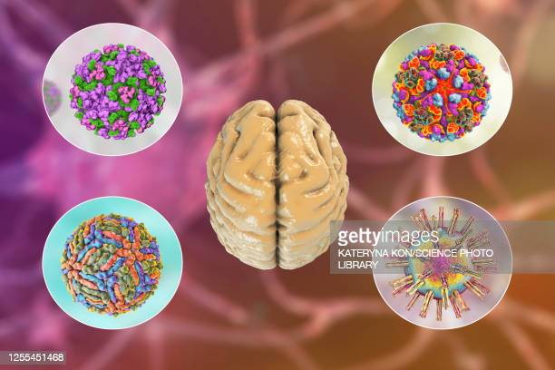 brain infections, illustration - american culture stock illustrations
