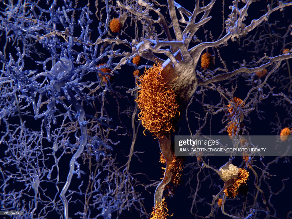 Brain nerve cells affected by alzheimers : stock illustration
