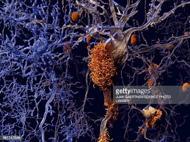 stockillustraties, clipart, cartoons en iconen met brain nerve cells affected by alzheimers - ziekte van alzheimer