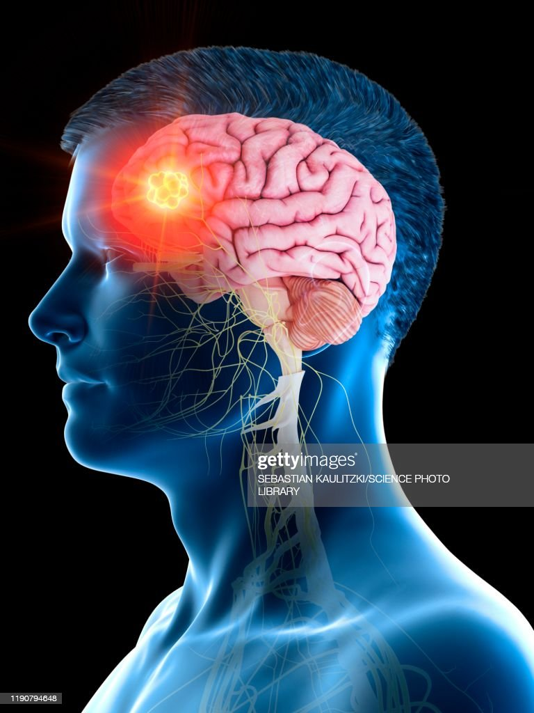 Brain tumour, conceptual illustration : Stock Illustration