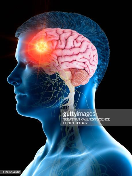 brain tumour, conceptual illustration - digitally generated image stock illustrations