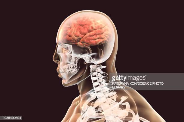 illustrazioni stock, clip art, cartoni animati e icone di tendenza di brain with encephalitis, illustration - cancrena