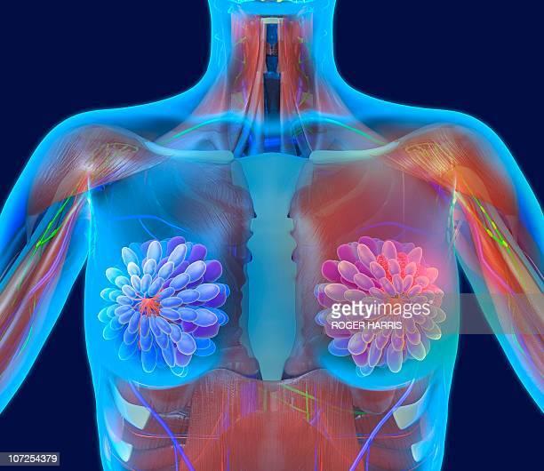 breast cancer, artwork - breast stock illustrations