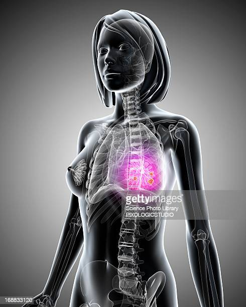 breast cancer, artwork - brustwarze stock-grafiken, -clipart, -cartoons und -symbole