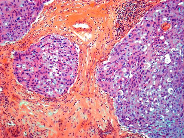 Breast Cancer, Light Micrograph Wall Art