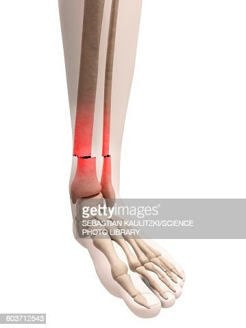 Broken Lower Leg Bones Illustration Stock Illustration | Getty Images