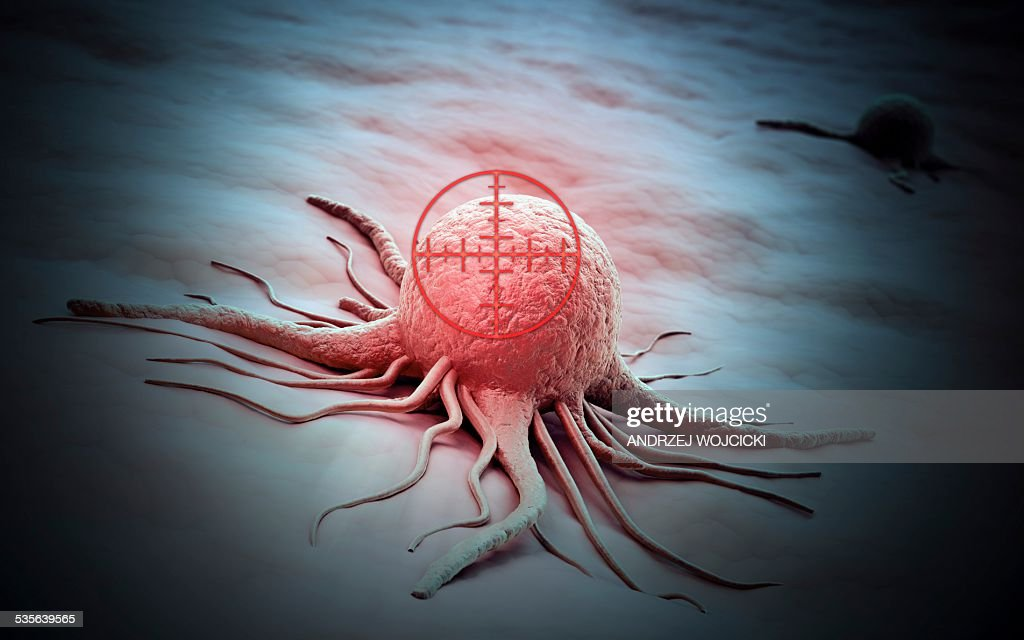 Cancer cell, artwork : stock illustration