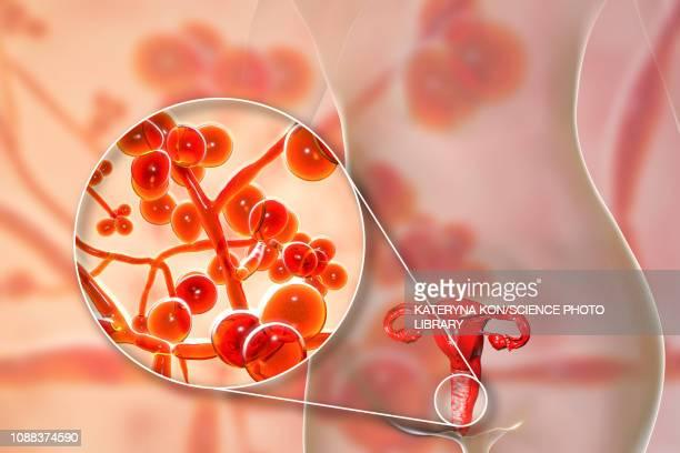 ilustraciones, imágenes clip art, dibujos animados e iconos de stock de candida auris infection in female, illustration - candida albicans