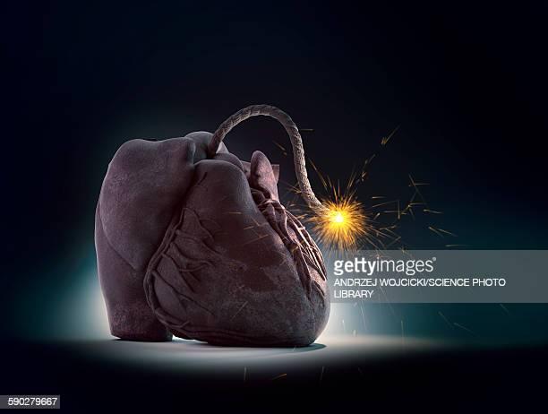 ilustraciones, imágenes clip art, dibujos animados e iconos de stock de cardiovascular disease, illustration - bomba
