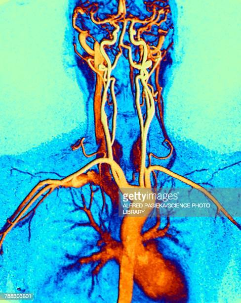 chest, neck and head arteries, mri scan - mri装置点のイラスト素材/クリップアート素材/マンガ素材/アイコン素材