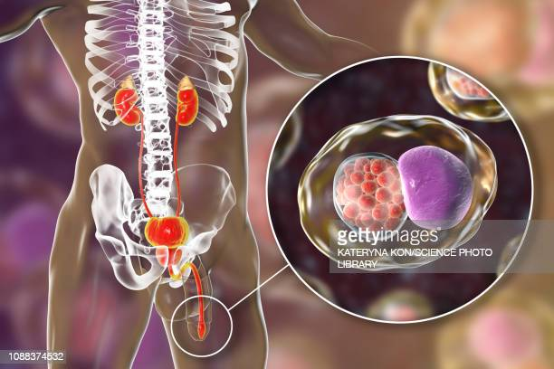 chlamydia infection, illustration - pap smear stock illustrations, clip art, cartoons, & icons