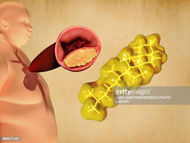 cholesterol and atherosclerosis, artwork - coronary artery stock illustrations, clip art, cartoons, & icons