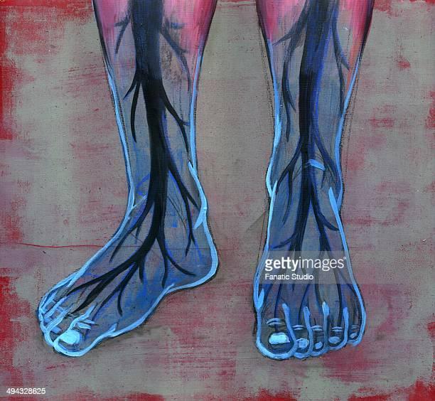 ilustraciones, imágenes clip art, dibujos animados e iconos de stock de close-up view of blue feet of diabetic person - pie diabetico