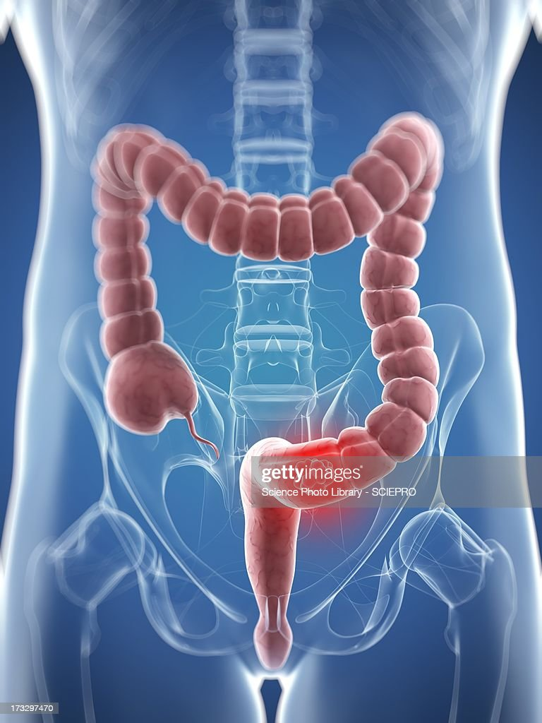 Colon cancer, artwork : Stock Illustration