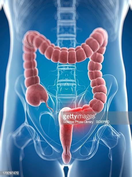 colon cancer, artwork - digestive system stock illustrations