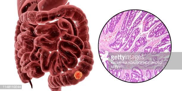 ilustraciones, imágenes clip art, dibujos animados e iconos de stock de colon cancer, composite image - tejido partes del cuerpo