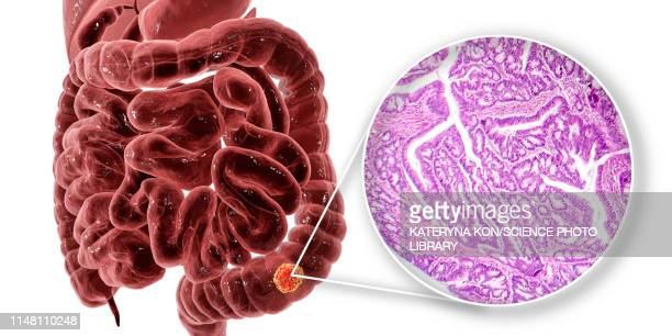 colon cancer, composite image - large intestine stock illustrations