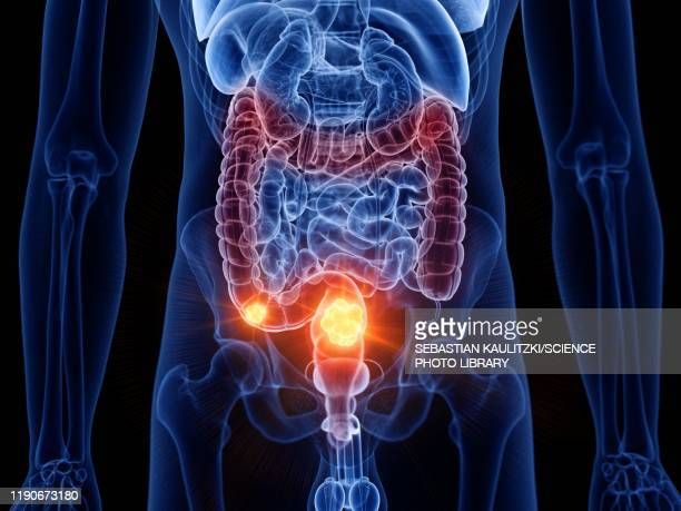 colon cancer, illustration - human intestine stock illustrations