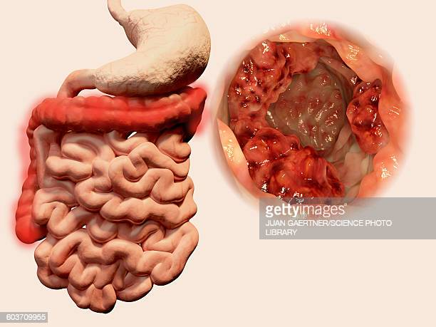 colon cancer, illustration - colon stock illustrations