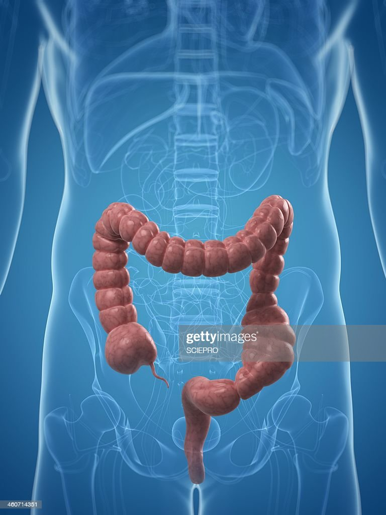 Colon Obstipation Artwork High-res Vector Graphic