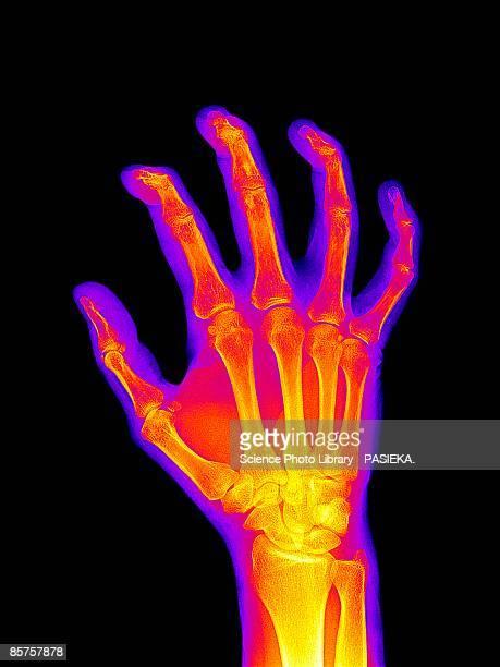 colored x-ray of arthritic hand - 医療診断機器点のイラスト素材/クリップアート素材/マンガ素材/アイコン素材