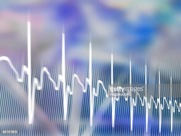 ECG. Computer artwork of an electrocardiogram (ECG)