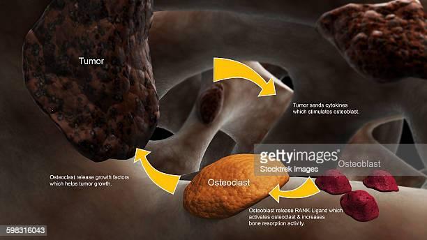 conceptual image illustrating the process of bone metastasis. - metastatic tumour stock illustrations